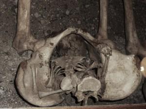 coffin-birth