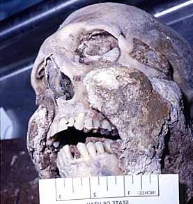 Grave Wax Clings to a Skull, via True Forensics