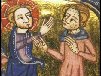 Medieval Leprosy, via Getty