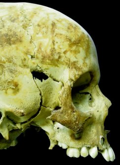Skull from the Kilkenny Mass Grave