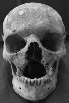 Leprosy evidenced from destruction of facial bones, Roffey and Tucker 2013