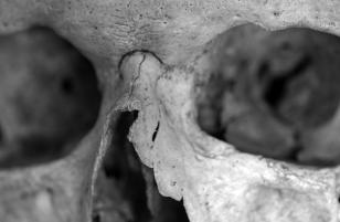 Healed Nasal Fracture on male from Denmark, via Fibiger et al. (2013)