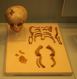 Egyptian Infant Skeleton with OI (not the one discussed in articles) from Museum of London, via Mina Science