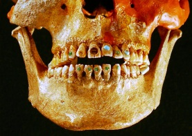 Gem Studded Teeth, via National Geographic