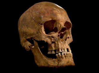Skull of King Richard III (maybe), via University of Leicester