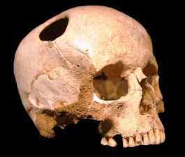 Trepanation in Neolithic Skull, via Wikimedia Commons