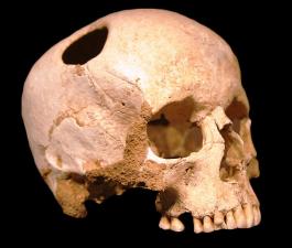 Trepanation in Neolithic Skull, via Wikimedia Commons
