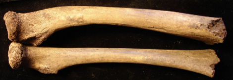 Top bone: sub-adult femur with bowing due to potential rickets, Bottom bone: normal sub-adult femur, via Pētersone-Gordina, E., Gerhards, G., & Jakob, T. (2013)