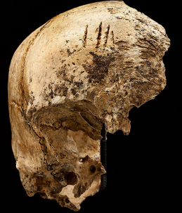 Frontal bone of the Jamestown girl, via Smithsonian / Don Hurlbert