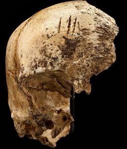 Frontal bone of the Jamestown girl, via Smithsonian / Don Hurlbert