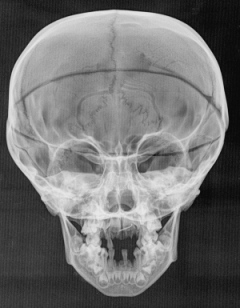 The bones of Filippo de' Medici, known as don Filippino, and other young members of his family revealed vitamin D deficiency, which caused rickets and a swelling of Filippino's skull. At his death in 1582, before he turned five, his skull was cut open in an autopsy, which explains the line cutting across the forehead. Via Giuffra et al. 2013