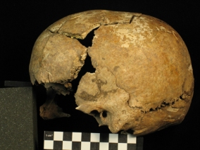 Cranium from the Turkish site of Domuztepe, added from Open Context, created by Suellen Gauld