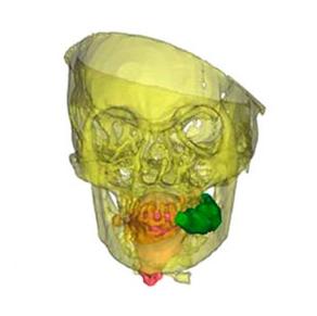 CT Scan of Maiden showing the green coca quid still in her cheek, via Wilson et al. 2013