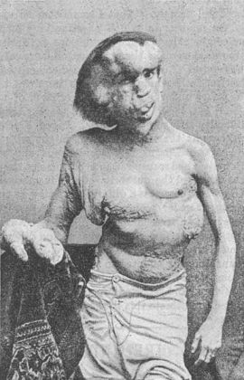 Joseph Merrick in 1889, via Wikimedia Commons