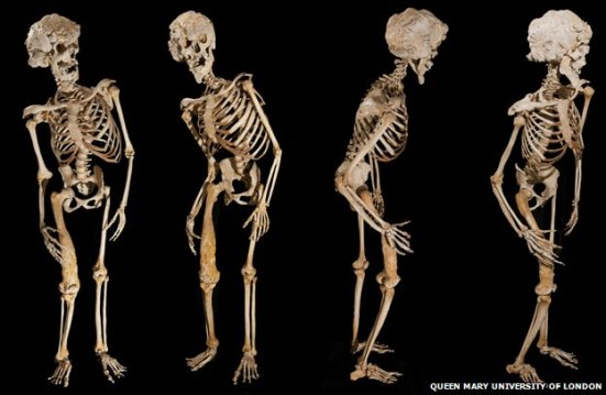 Skeleton of Merrick, via Queen Mary University of London and BBC News