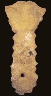 Sternal foramen is an example of a non-metric trait, via UFL
