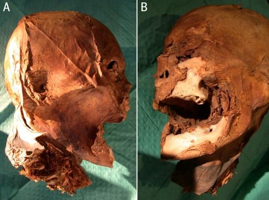 Mummified head of Henri IV, via History Blog