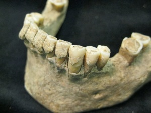 Dental calculus buildup on teeth, example from medieval Denmark, via Archaeology News Network