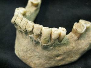 Dental calculus buildup on teeth, example from medieval Denmark, via Archaeology News Network