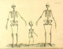 Comparison of adult male, child and adult female skeletons, shows why young age easier to estimate than old due to growth. Via Medical Ephemra