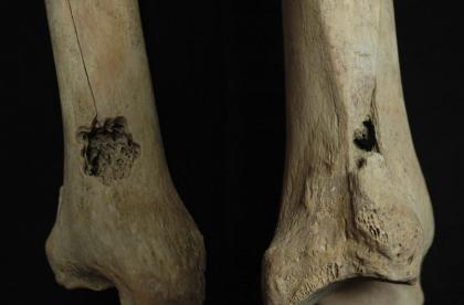Në Perunë e lashtë ka ndodhur për herë të parë operacioni në gjymtyrë