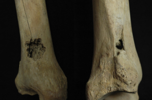 Tibia of the first individual with trepanation drilling, Toyne (2015)