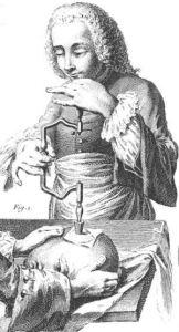 Illustration of trepanation from 1800s France, via Wikimedia