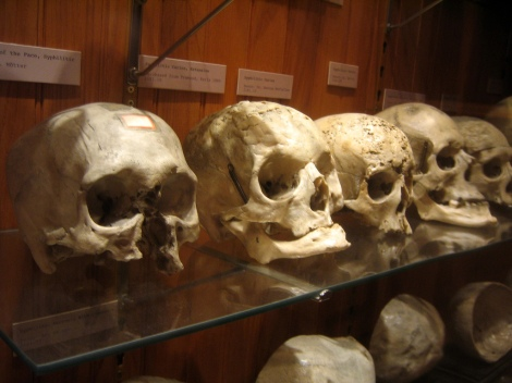 Skulls from the Mutter Museum, photo by Flickr user istolethetv