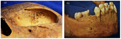 Examples of cribra orbitalia and defects of dental enamel, from