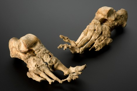 Skeleton, mature female, showing effects of leprosy, from a medieval Danish leprosy cemetary, reputedly c.1350. Credit: Science Museum, London. Wellcome Images images@wellcome.ac.uk