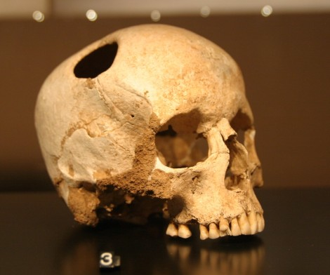 Example of trepanned skull from Neolithic Switzerland, via Wikimedia Commons
