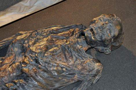 Bog body of Haraldskær Woman