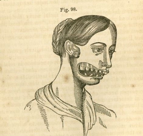 Archival drawing from 19th c of phossy jaw by Mutter, via Gizmodo