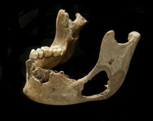 Individual 69's mandible showing the destruction to the bone, via Roberts et al. 2016
