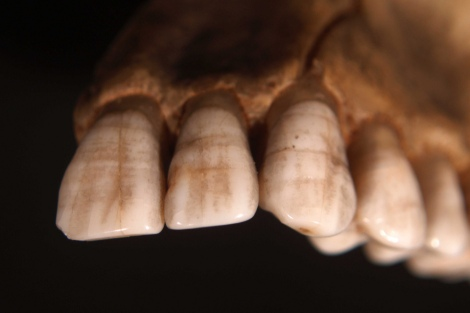 Example of LEH, via National Museum of Health